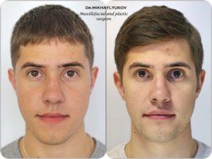 Фотографии пластических операций доктора-хирурга Михайлюкова Владимира Михайловича